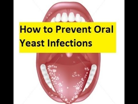 Avoid gum disease with good oral hygieneиз YouTube · Длительность: 2 мин10 с
