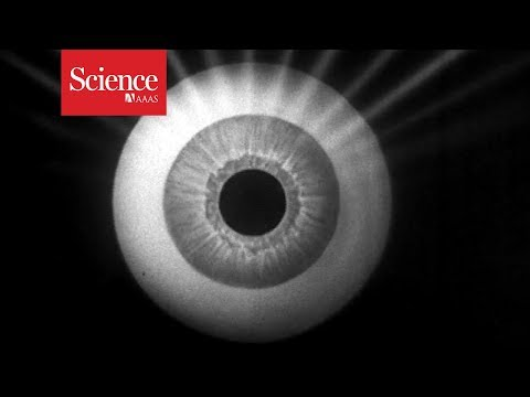 Watch tiny robots swim through an eyeball to deliver medicine