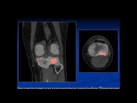 Михалюк А.В. «Двуэнергетическое сканирования в оценке отека костного мозга при КТ»
