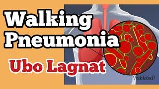 """walking Pneumonia"" Delikado Ba? - Payo Ni Doc Willie Ong #825"