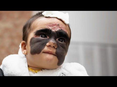"A bebé super-heroína que nasceu com a ""máscara do Batman"""