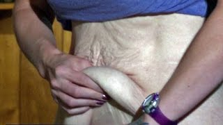 ConsumerWatch: Loose Skin Removal Surgery