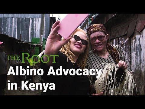 Kenyan Woman Beats Albinism