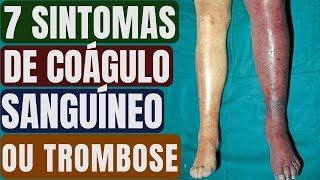 Causa sanguíneos que o pernas coágulos nas artérias das