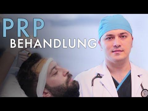 VORTEILE der PRP Behandlung - Dr. Balwi erklärt