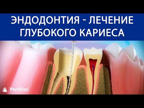 Сколько болит зуб после лечения глубокого кариеса