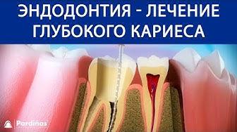 Эндодонтия - Лечение глубокого кариеса ©
