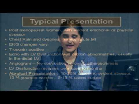 Stress Cardiomyopathy: Medicine Grand Rounds