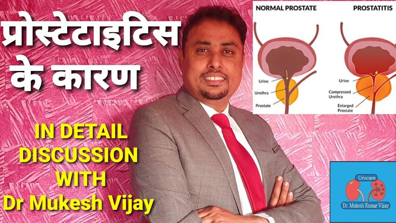 Segítség a prostatitis