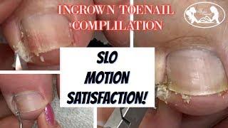 👣Satisfying Ingrown Toenail Compilation with Slo Motion 👣