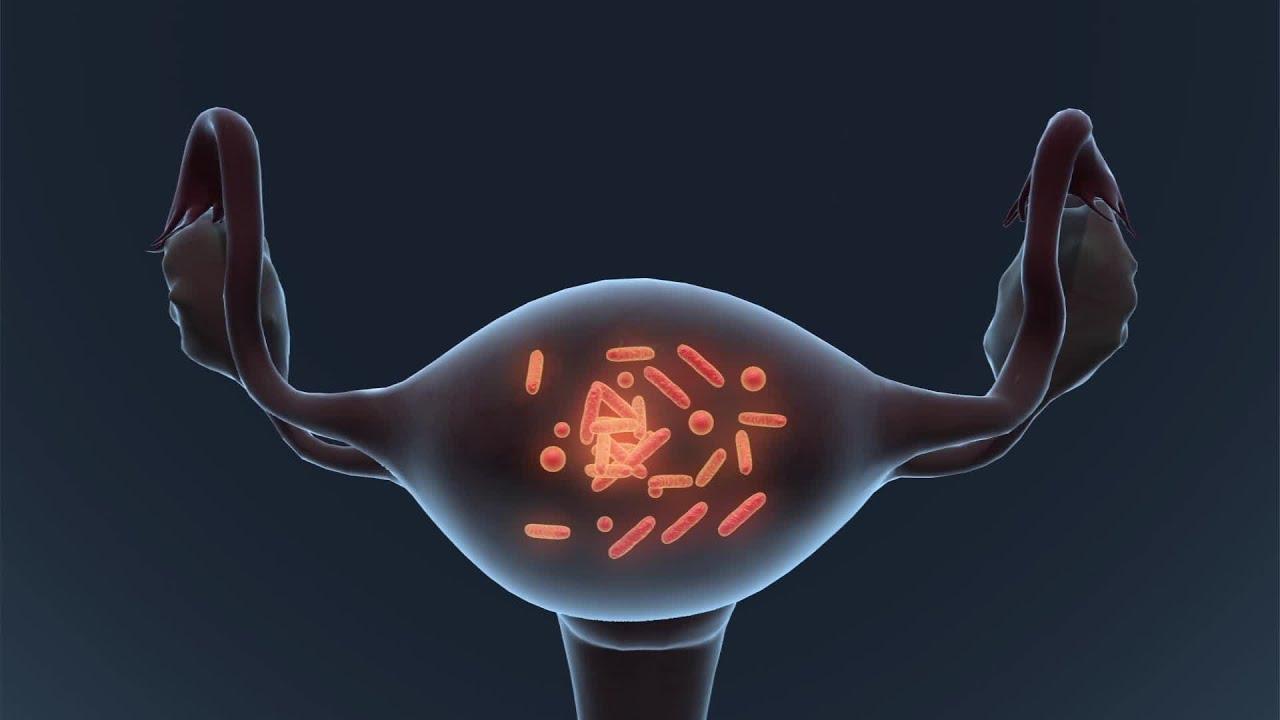 Készülékek prosztatagyulladás kezelésére - vatisz.hu