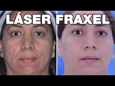 Eliminar Marcas de Acné | Láser Fráxel | Antes y Después