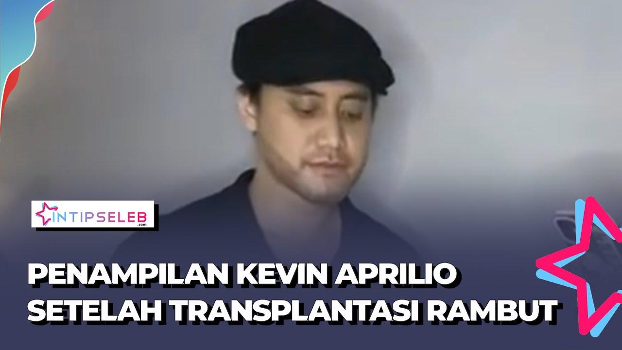 Penampilan Terbaru Kevin Aprilio Setelah Sebulan Transplantasi Rambut