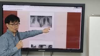 의사국가고시 영상의학 강의 특강 - 소화기 1