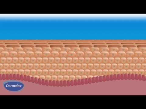 Dermalex Eczema - how it works