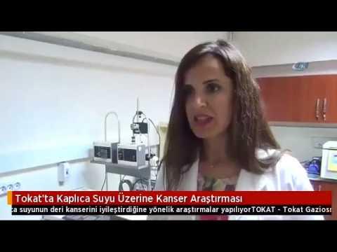 Tokat'ta Kaplıca Suyu Üzerine Kanser Araştırması